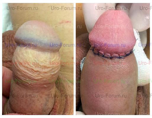 До и после лечения фимоза
