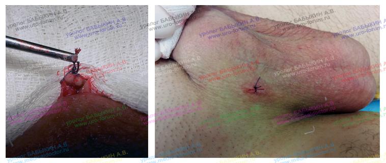 Операция вазэктомия - мужская стерилизация
