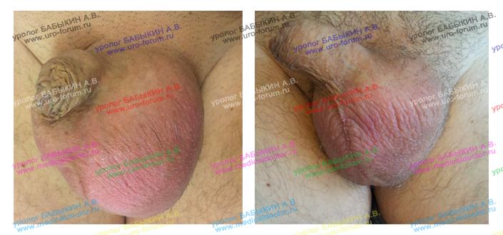 До и после операции при водянке яичка у мужчин