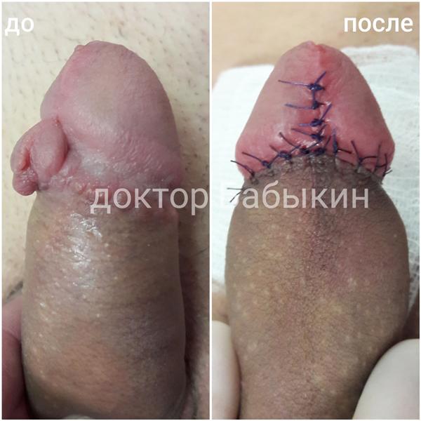 Исправления неудачного обрезания крайней плоти