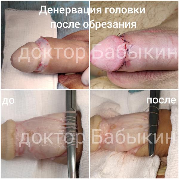 Селективная денервация головки пениса при лечении преждевременной эякуляции