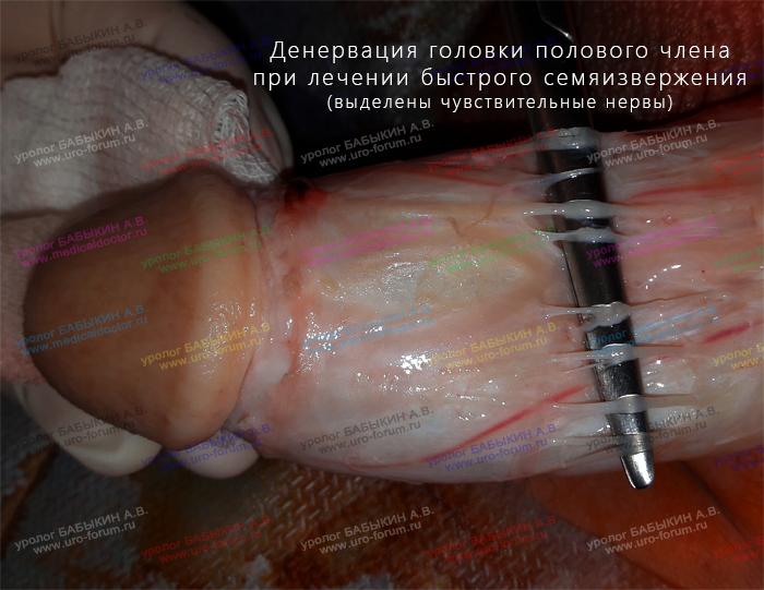 Изменение размеров пениса лигаментотомией