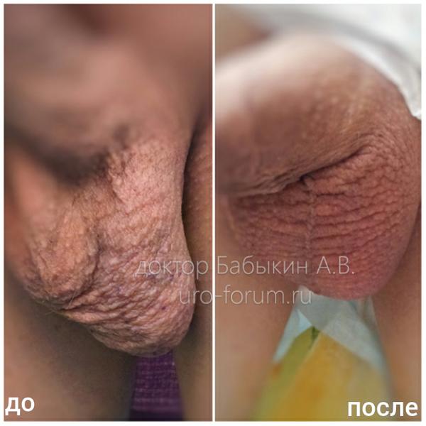 Операция Мармара при лечении варикоцеле. До и после